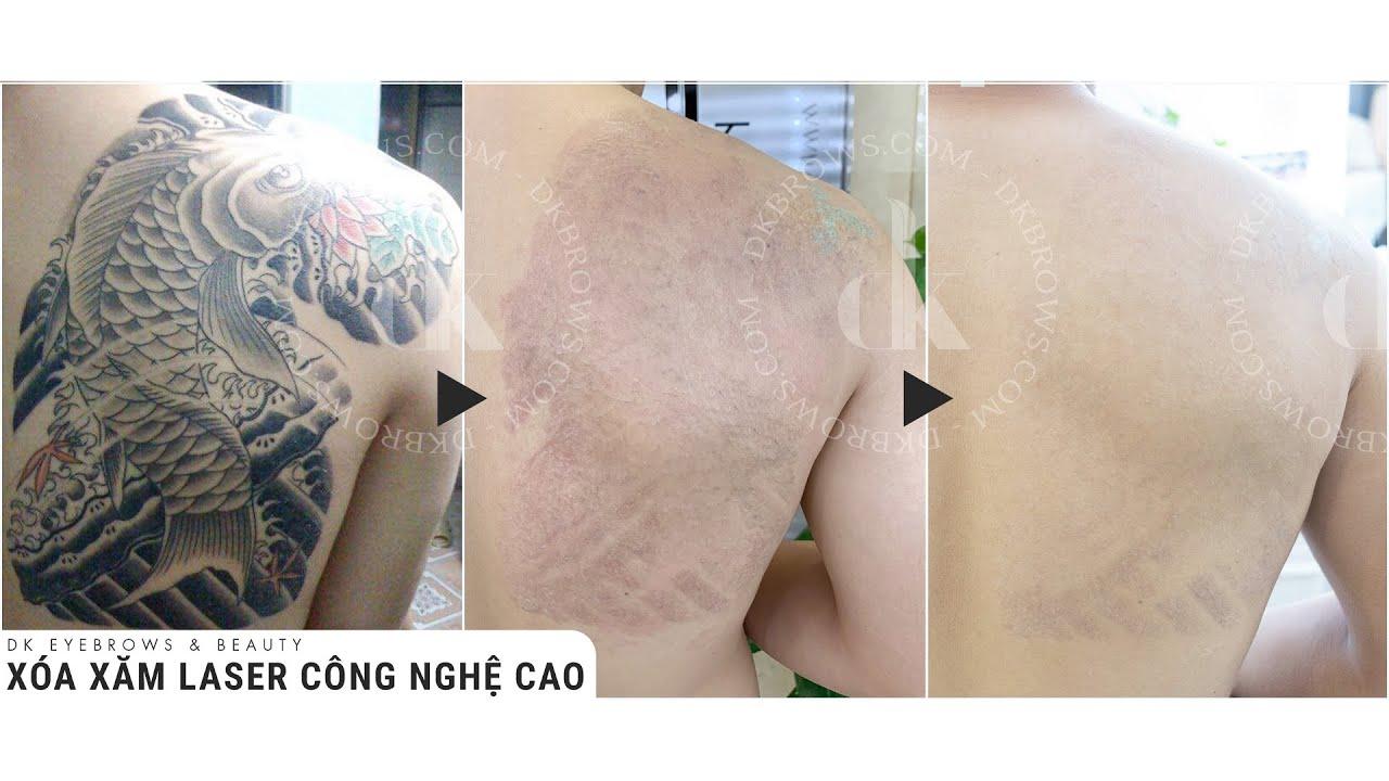 Xóa xăm Tattoo bằng Laser an toàn, không để lại sẹo