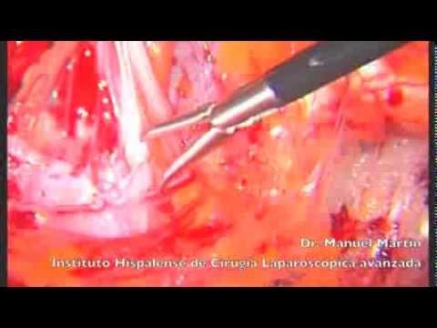 hernia-inguinal-.-cirugía-laparoscópica-extraperitoneal.-anatomía-quirúrgica-(-tep)