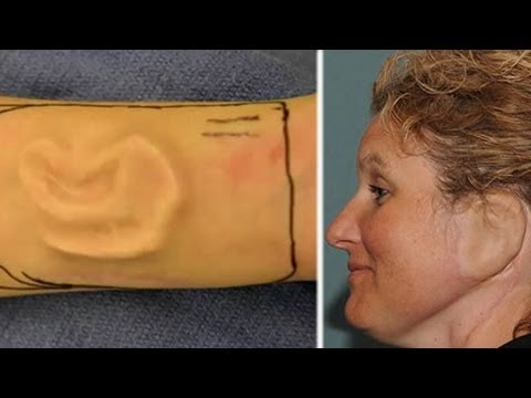 Woman Grows Ear On Her Arm