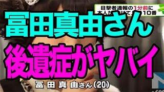 【悲劇ニュース】冨田真由さん容態_冨田真由さんの刺された箇所が判明…⇒左目4回、右目1回、口3回刺され顔面崩壊する。。。後遺症がヤバイと話題に・・・