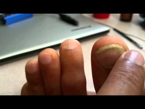 Toe Nail fungus gone with Colloidal Silver