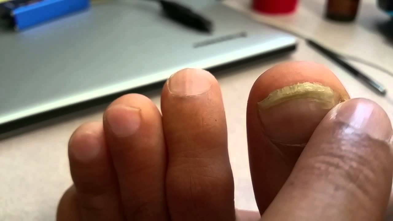 2015, Toe Nail fungus gone with Colloidal Silver, 2nd Video - YouTube