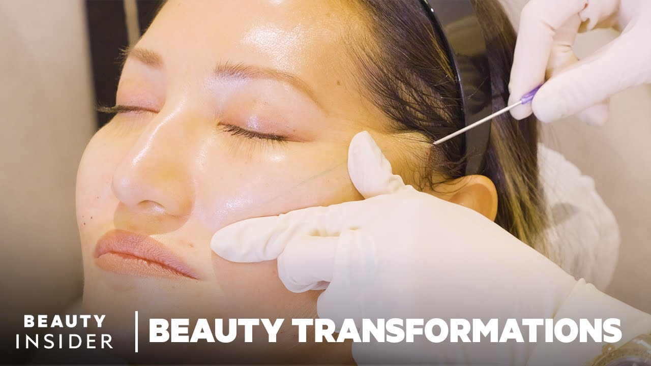 How Nonsurgical Face-Lifts Work With PDO Threads | Beauty Transformations