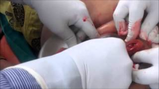 Breast Abscess Drained