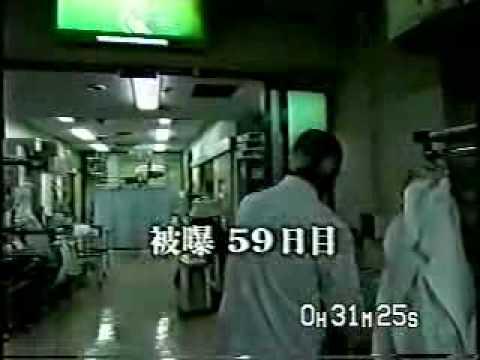 【閲覧注意】東海村JCO臨界事故の経過・原因と被爆者の治療 ...