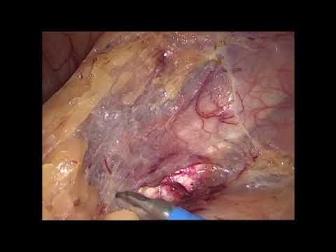 Лапароскопическая низкая передняя резекция прямой кишки с ICG контролем кровоснабжения кишки