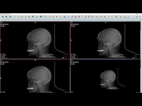 Как посмотреть запись исследования МРТ или КТ на диске