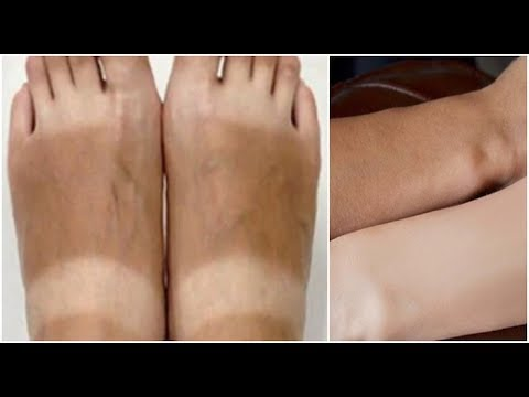 How to Remove Sun Tan from Legs, Hands & Feet Instantly in 10 Minutes!
