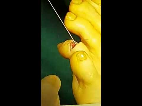 Toe Surgery - Do NOT Watch if Easily Queasy