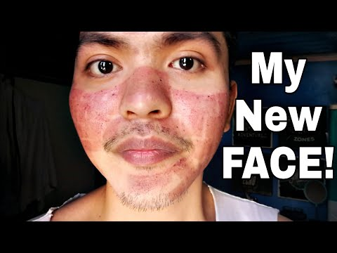 My Fractional CO2 Laser Treatment Experience (TAGALOG)
