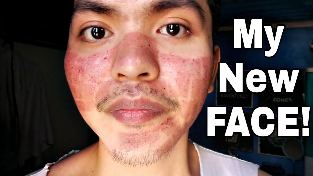 My Fractional Co2 Laser Treatment Experience Tagalog Youtube