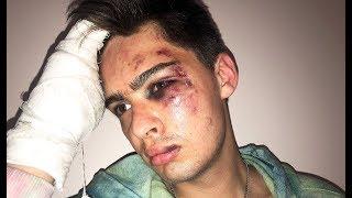Студента избили и ограбили в центре Москвы! Спасибо, Росгвардия! #ПГДАЙОТВЕТ
