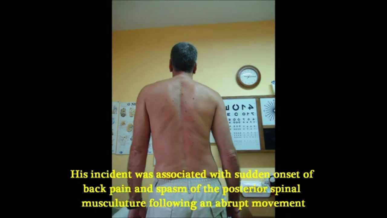 Severe back pain and analgesic scoliosis treated with ...