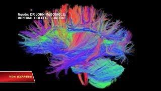 Mối liên hệ giữa não và tuổi tác