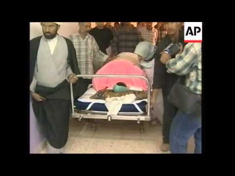 Young Iraqi War Victim Flown To Kuwait