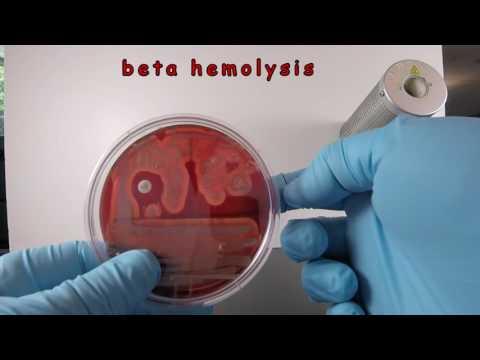 Staphylococcus aureus on Blood Agar with a NB Disc