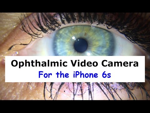 iPhone 6s Ophthalmic Camera and Video