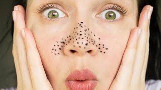 إزالة الرؤوس السوداء من الانف ومن الوجه بثلاث مكونات موجودة في كل منزل فعالة ومضمونة بخمس دقائق فقط