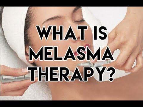 Melasma Therapy