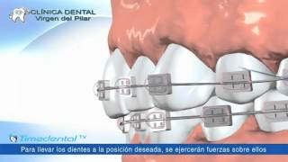 ¿Qué es una ortodoncia? por Clínica Dental Virgen del Pilar