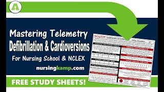 What are Ventricular Rhythms Defib Cardioversion Nursing KAMP NCLEX 2019