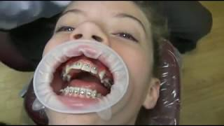 Watch how we put your braces on!