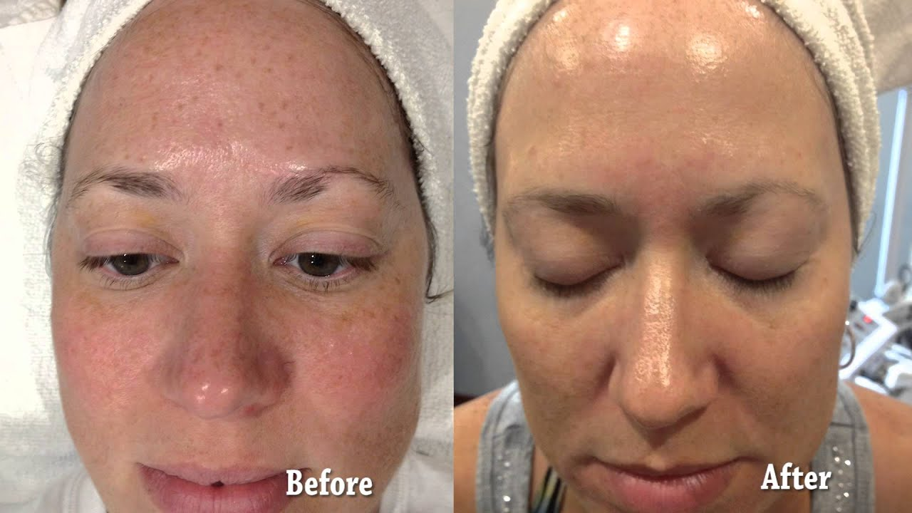 Collagen Induction Therapy Before And After Youtube
