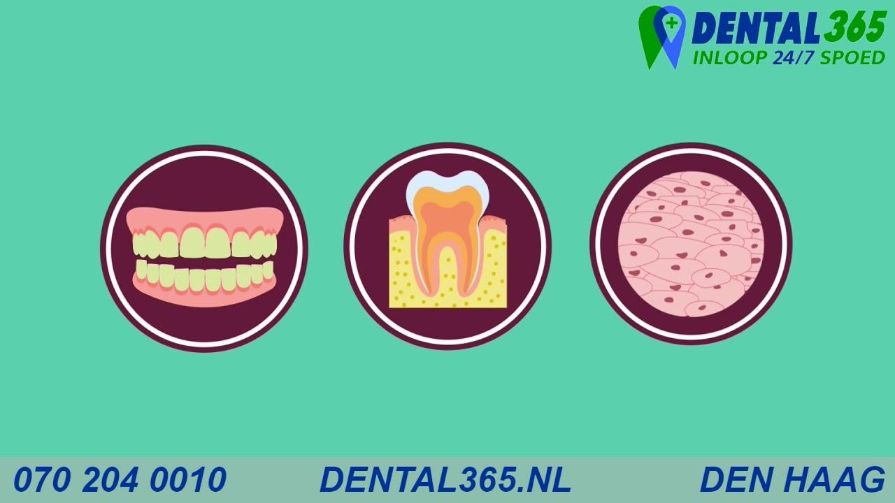 Dental365 Emergency Dentist +31 85 105 1750 Walk-in 8am to 11pm