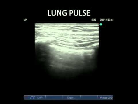 lung pulse - YouTube