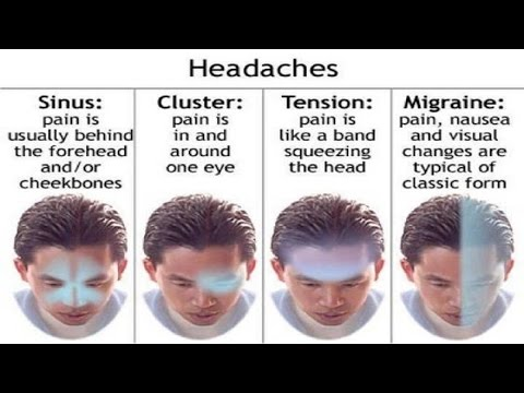 Accupuncture For Migraine – Acupuncture For Migraines : Using Acupuncture For Migraines