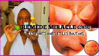 REMÈDE MIRACLE CONTRE LES POINTS NOIRS ET LES BOUTONS