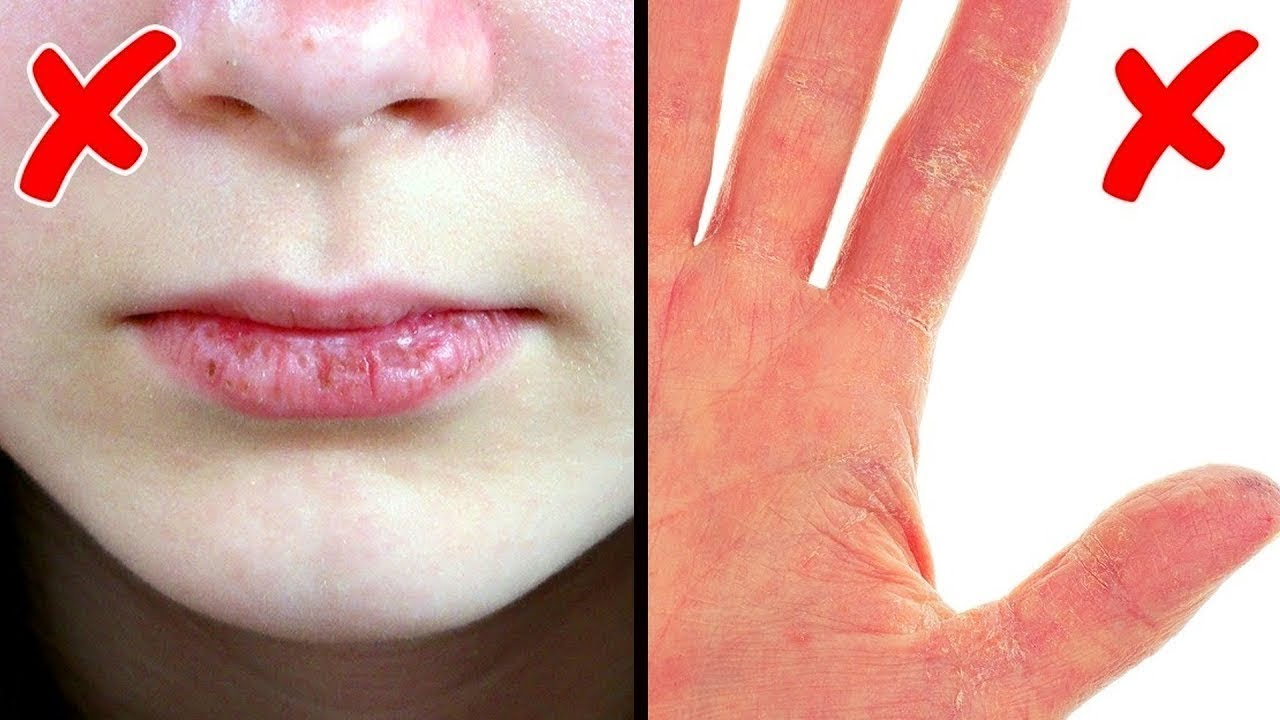 Sağlığınız İçin Vücudunuzdaki 5 İşarete Dikkat