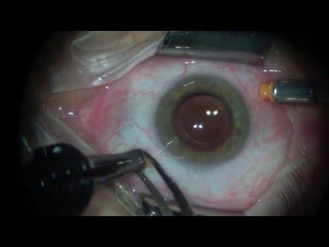 Cirurgia de Retina Câmera Opticam Microscopy Technology 1080P