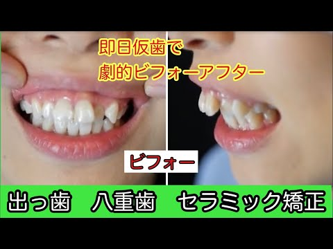 出っ歯、八重歯、ガミースマイルで悩まれていた美しい女性
