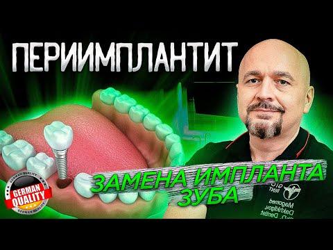 Зубные имплантаты с -