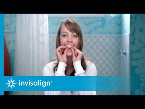 Alternatives to Braces for Teens  Invisalign® Clear Aligners