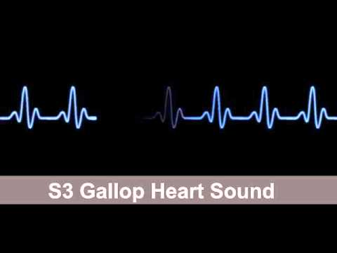 S3 Gallop   Heart Sound Collection For Auscultation Skills