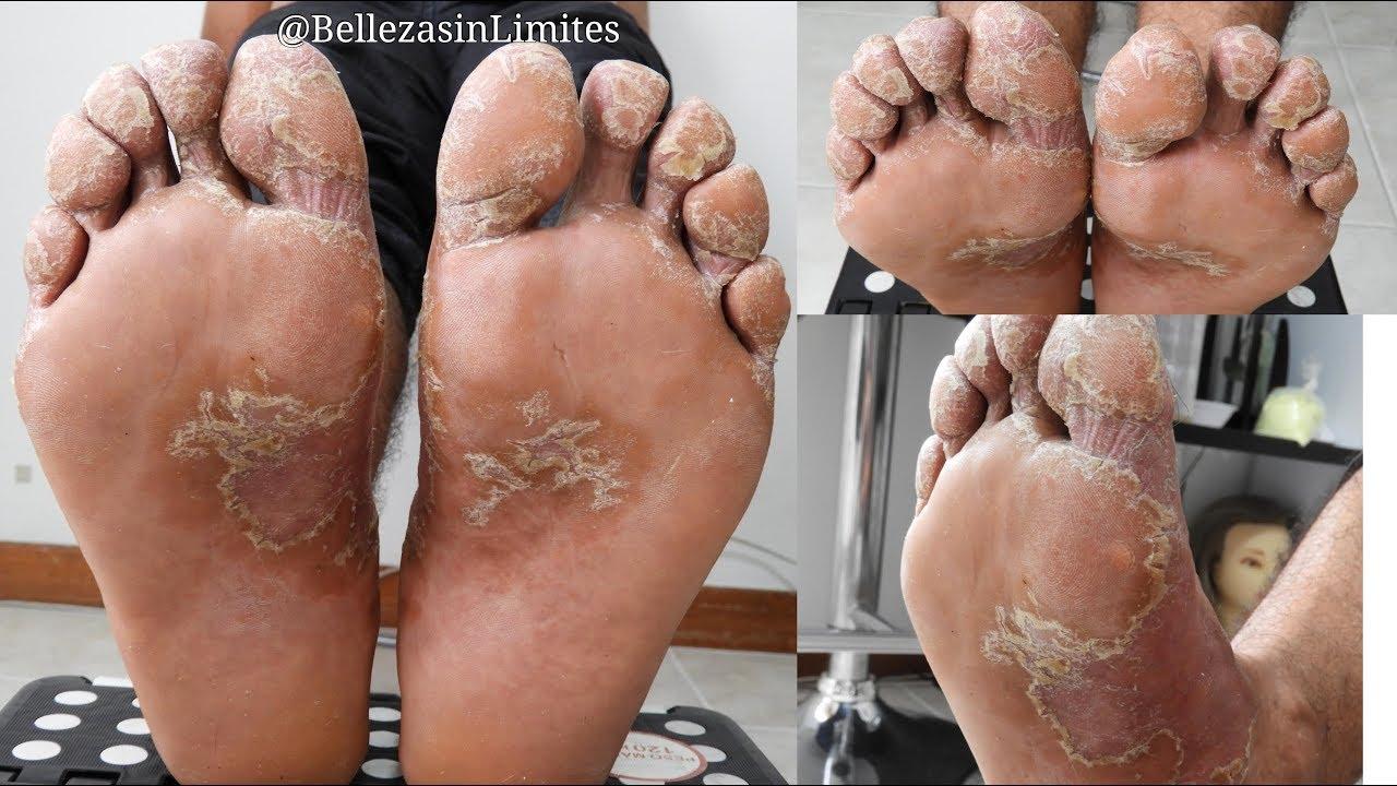 como quitar el hongo del pie rapido