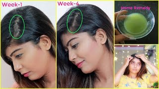 HOW I STOPPED MY HAIR FALL AND GROW HAIR FASTER 100% WORK | MY Personal Experience | Rinkal Soni