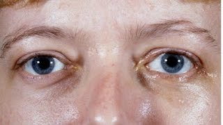 Black Spots In Vision, Eyes Floaters, Flashes In The Eye, What Is Eye Floaters, Eye Black Spots