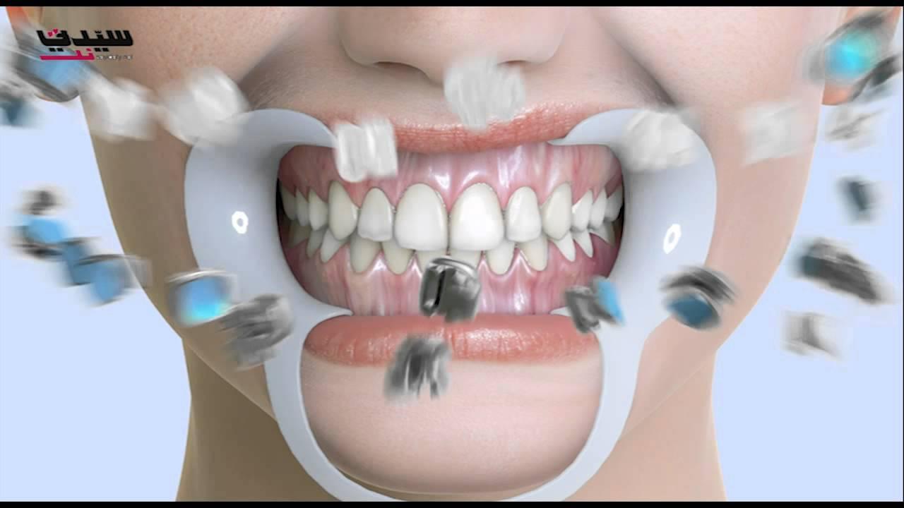 تعر في إلى الحالات التي تستدعي تقويم الأسنان Youtube