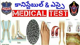 TSLPRB Medical Test || Ts Constable and Si Medical Test Full Details || మెడికల్ టెస్ట్ ఎలా చేస్తారు