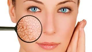 видео Сильно шелушится кожа на лице: что делать и почему