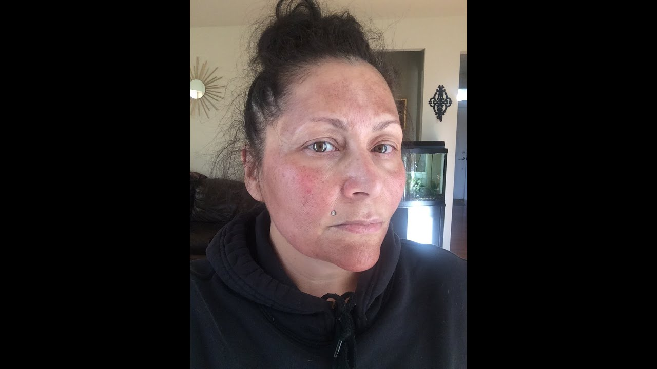 chemical skin peeling on face