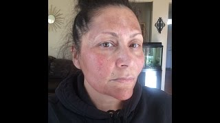 my first tca 25 facial chemical peel day 3 4