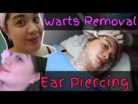 SKIN TAG REMOVAL & EAR PIERCING ❤️ thumbnail