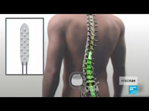 Medical breakthrough: a spinal cord implant helps paralyzed patients to walk again