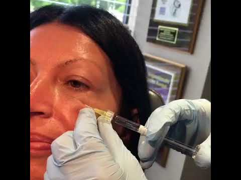 Eyelid Expert Dr. James R. Gordon treats delicate eye area