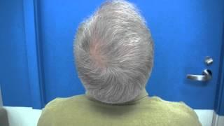 Hair Transplant Patient - Dr Wong - 3361 Grafts