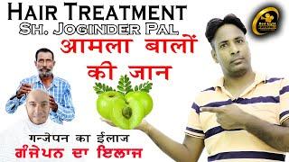 Benefit Of Amla  आमल बल क जन  Ganjepan Ka Ilaz  Hair Treatment Joginder Pal